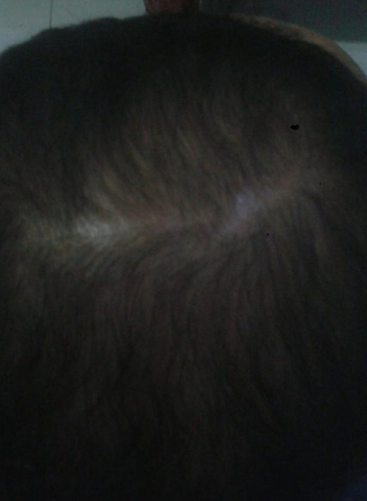 C'C Oil Penumbuh Rambut Alami - Mengatasi kebotakan serta Menyuburkan Rambut